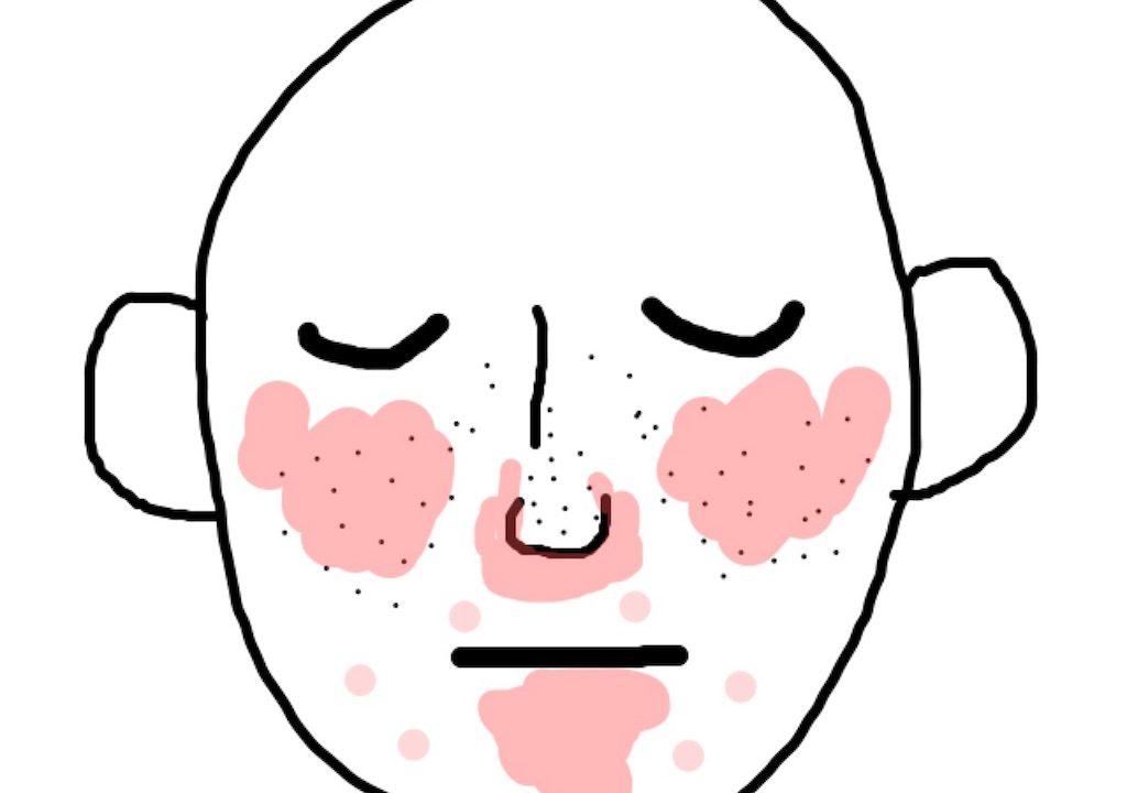 美顔器 ニキビ